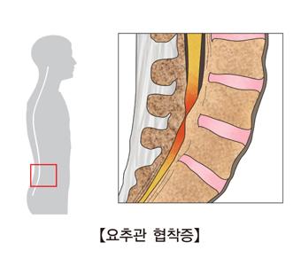 요추관 협착증